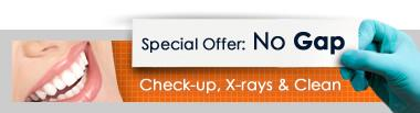Special offer:No Gap Dental Check-up, X-rays and Teeth Cleaning